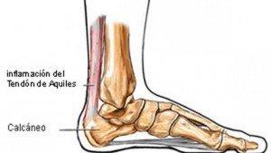 tendinitis tendon de aquiles