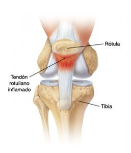 tendinitis rotuliana