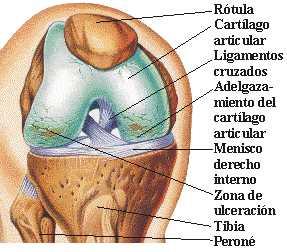 desgaste cartilago