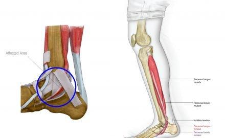 tendinitis tibial posterior